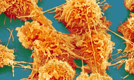 Cellules de cancer du colon grossissement 2000 (c) Corbis images