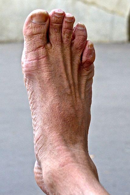 Combien d'os, de muscles et de tendons, déjà ?